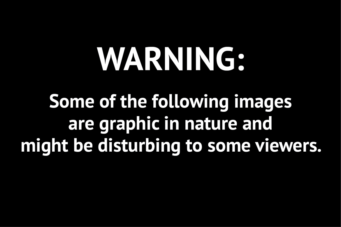 13 Warning Some Graphics Images