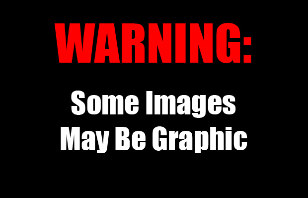 7 Warning Graphic Content Images